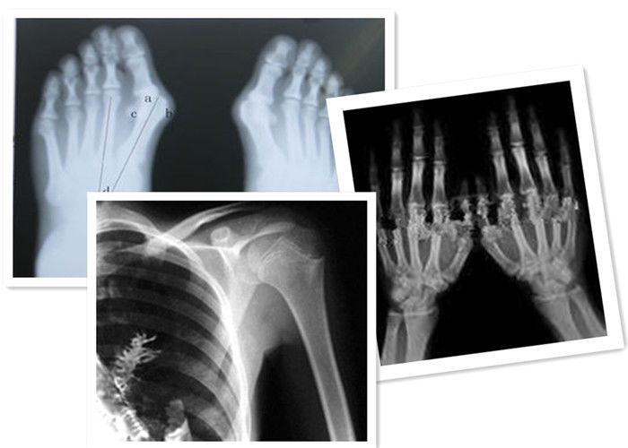 Radiology-film